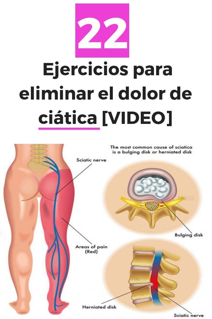 Ejercicios para eliminar el dolor de ciática