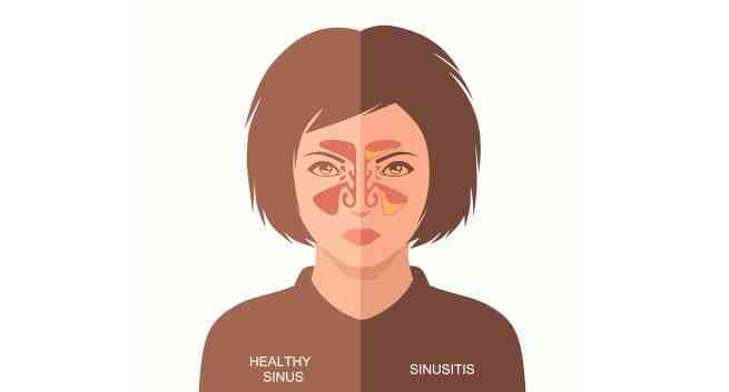 10 Remedios naturales para la infección de los senos nasales