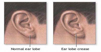 La conexión oculta entre el pliegue de la oreja y la enfermedad cardíaca 36