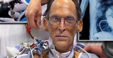 Los médicos le quitaron el corazón e instalaron este extraño dispositivo en su lugar. Los resultados son impactantes. 47